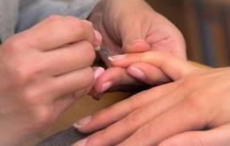 नाखूनों के रोगों को दूर करने के घरेलू उपाय